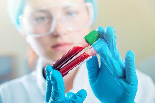Мало лейкоцитов в крови: что это значит и как их повысить