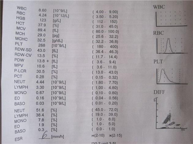 RDW в анализе крови