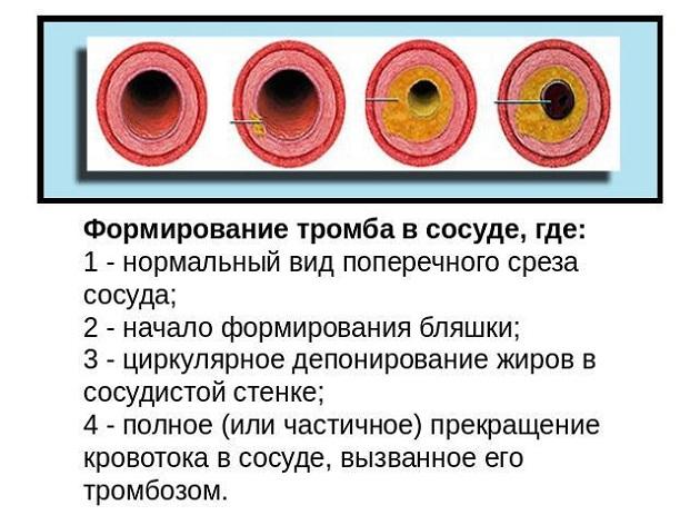 Этапы образования тромба