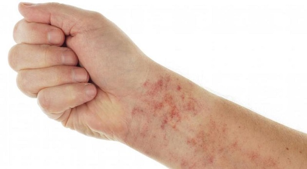 Паразитарная аллергия