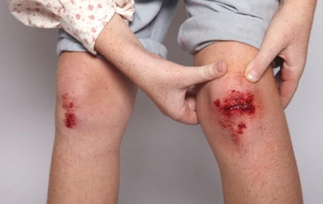 Капилярное кровотечение