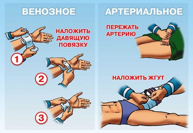 Наложение повязки при кровотечении