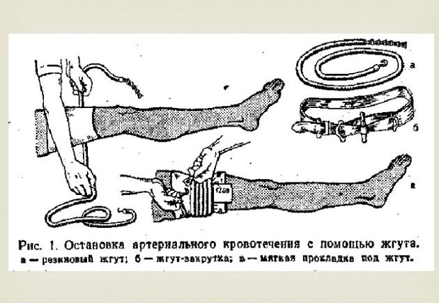 Правила наложения жгута