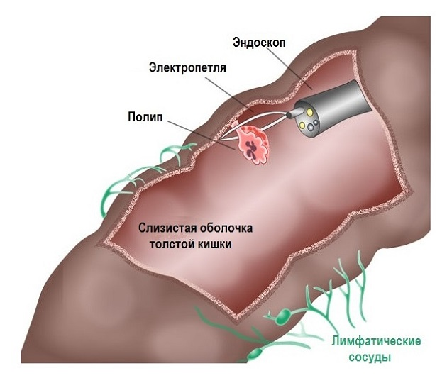 Эндоскопия заднего прохода
