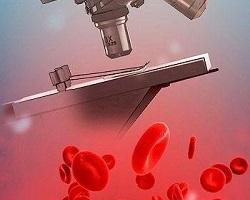 Что показывает биохимический анализ крови: сравнение нормы и полученных показателей