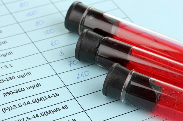Нормы RDW в крови