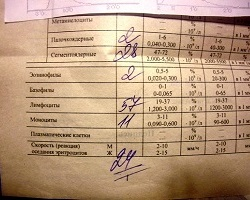 Общий анализ крови - как расшифровать показатели