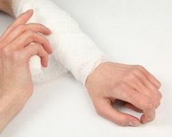 Как остановить венозное кровотечение: способы оказания первой помощи